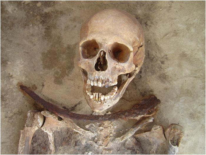 Squelette de femme avec une faucille sur le coup retrouvé dans le cimetière de Drawsko (Pologne) (cc by Gregoricka et al.)