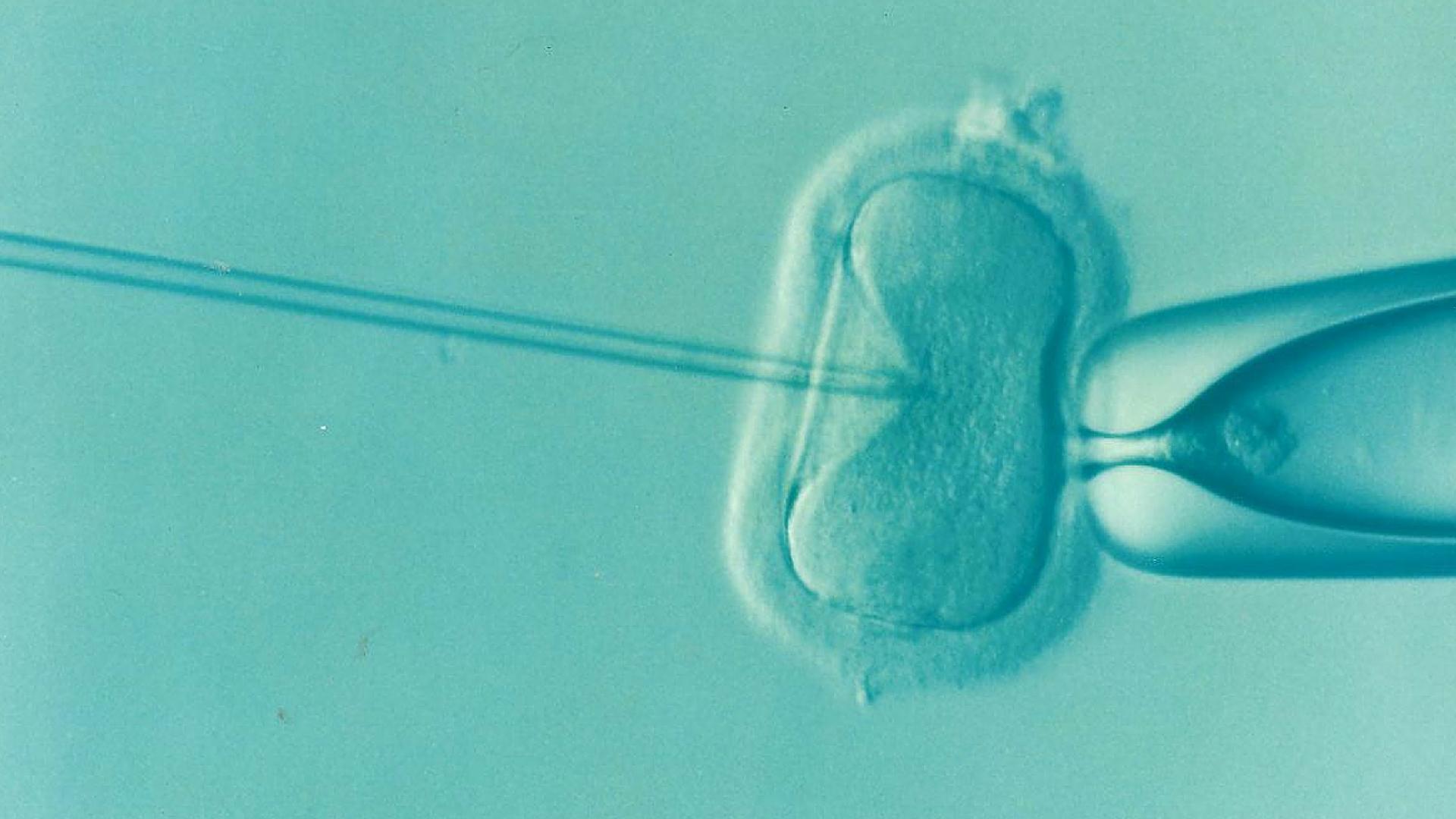 Image de FIV-ICSI. L'ovule est maintenu en place tandis qu'une aiguille le pique pour injecter le noyau d'un spermatozoïde